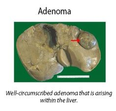 Liver cell adenoma is a common and benign (non-cancerous) tumor of the liver.