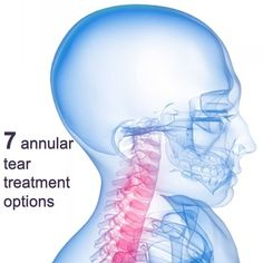 Annular tears can can lead to numbness, weakness and pain in the neck, back and extremities. Consider these options to treat the symptoms