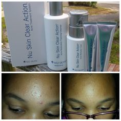 Help Clear Up Acne Using Nu Skin Clear Action Acne Medication System Galvanic Spa, Nu Skin, Clear Skin, Cleanser, Medical, Lipstick, Action, Content, Diamond
