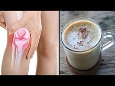 Drink this drink to get rid of knee and joint pain in 5 days! – Y … - gesundheit Fitness Workouts, Fitness Tips, Health Fitness, Healthy Tips, Healthy Skin, Types Of Arthritis, Health Promotion, Natural Health, Smoothies