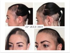 Alopecia Areata: The Stages of Regrowth AIP