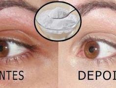 Acabe de forma rápida com as olheiras com este único ingrediente - Dicas e Truques Online