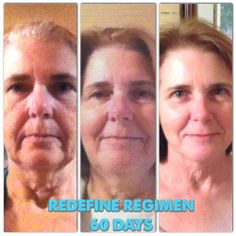 She looks YEARS younger!! This is after one round (60-day supply) of our amazing #REDEFINE regimen. Try it RISK FREE! Either you love it or you get a full refund. sarahkwheeler.myrandf.com