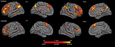 Cannabis consumers show greater susceptibility to false memories - http://scienceblog.com/77944/cannabis-consumers-show-greater-susceptibility-to-false-memories/