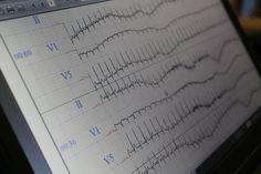 Stress ECG at Labiomep