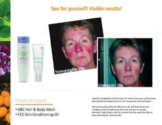 Results...PROVEN!  the ABC line is great for adults with sensitive skin as well! let me know if you'd like a FREE sample, find out how to order or host a party so you can get at a huge discount!
