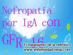 GFR es una prueba confiable para medir la enfermedad renal. Pacientes nefropatía IgA son a menudo sugieren para hacer esta prueba para controlar su enfermedad renal