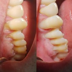 Cervical abfraction treatment with composite fillings SEE DETAILS Dental Hygiene, Dental Care, Smile Dental, Dental Procedures, Receding Gums, Dental Problems, Bad Breath, Cosmetic Dentistry, Cavities