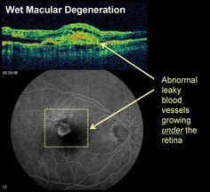 Macular Degeneration Los Angeles Macular Degeneration Treatment, Opthalmic Technician, Optical Coherence Tomography, Optometry School, Eye Study, Eye Anatomy, Big Data Technologies, Eye Facts, The Retina
