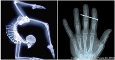 PHOTO GALLERY: Shocking X-Rays Where The Patient Somehow Survived