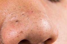 Siyah noktalar bir çeşit sivilce türüdür ve yüzünüzdeki gözenekler kir, sebum ya da ölü hücrelerden dolayı tıkandığı zaman meydana gelir.
