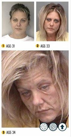 7 Not Safe For Life Photos That Will Convince You Never To Try The Horror Drug Meth