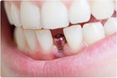 Amanarea controalelor regulate in cabinetul medicului stomatolog si in general neprezentarea in timp util pentru a solutiona diverse probleme de la nivelul danturii, adesea are ca si deznodamant pierderea unuia sau a mai multi dinti. Implants Dentaires, Dental Implant Surgery, Dental Surgery, Wisdom Teeth Meme, Dental Bridge Cost, Tooth Extraction Aftercare, Teeth Whitening That Works, Tooth Replacement, Dental Cosmetics