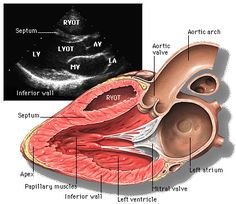 Figure 1: Parasternal long axis view: http://www.med.yale.edu/intmed/cardio/echo_atlas/contents/index.html