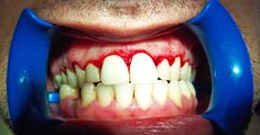 This is How To Heal Gum Disease In a Week (Or Less!)
