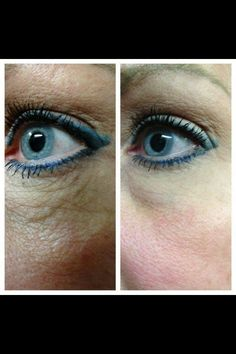 Nerium AD - this picture speaks for itself. If you would like to try it, order it at http://karijudy.neriumproducts.com.  it has a 30 day money back guarantee.  You will have nothing to lose but wrinkles!