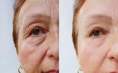 Beauty Skin, Hair Beauty, Healthy Beauty, Facial Masks, Beauty Hacks, Lens, Health Fitness, Make Up, Skin Care