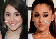 Nose Plastic Surgery, Plastic Surgery Photos, Celebrity Plastic Surgery, Ariana Grande Nose Job, Rhinoplasty Before And After, Oily Skin Treatment, Combination Skin Care, Nose Shapes, Skin Care Routine 30s