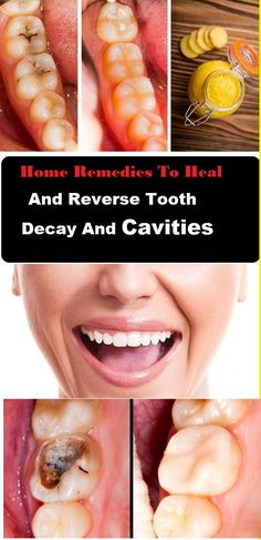 If you're suffering from painful cavities and tooth-related problems, this article is just for you. Cavity and tooth decay are the world's most common oral