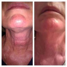 Rodan and Fields Anti Aging dermatological skin care= No More TURKEY NECK  for more information contact me, www.aliciaheard.myrandf.com