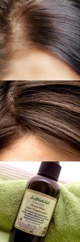 Grow New Hair Treatment #regrowhairnaturally