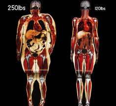 Body fat comparisons.look at the fat around the internal organs. Motivation.