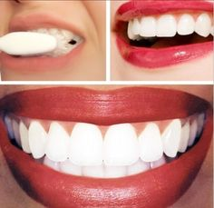 Dr.Oz Whitening Home Teeth Remedy: 1/4 cup of baking soda + lemon juice from half of a lemon. Apply with cotton ball or q-tip. Leave on for no longer than a minute, then brush teeth to remove.....  Tried this and saw results the first time :)