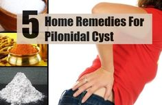 Pilonidal cyst is a sac like structure that forms along the tailbone. It occurs near the cleft of the buttocks and above the anus. The cyst is generally Home Remedies For Herpes, Cystic Acne Remedies, Cellulite Remedies, Home Remedies For Hair, Essential Oils For Cysts, Natural Treatments, Natural Remedies, Pilonidal Cyst, Positive Mental Health