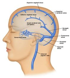 dural venous sinuses | Cerebral (brain) venous thrombosis is uncommon occurring in 1/lac ...