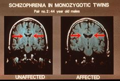 These are MRI scans of a twin with schizophrenia and a twin without schizophrenia. Between the two lobes we have a bundle of nerve fibers called the Corpus Callosum which relays information between the two lobes. In unaffected people, the Corpus Callosum is smaller and has small areas of fluid surrounding it called ventricles. In people with schizophrenia, the ventricles are larger along with the corpus callosum, which enlarges itself in an attempt to better relay the information.