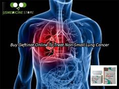 Geftinat 250mg Tablets are a potent anticancer drug, which is used successfully for the treatment of non-small lung cancer. Sometimes, it is also used in the management of some other type of cancer. It can slow down the growth of the cancer cells and prevents their growth. If you are also dealing with non-small lung cancer then, buy Geftinat online from US Medicine Store. For further assistance call us at our toll-free number: +1-888-609-2505.