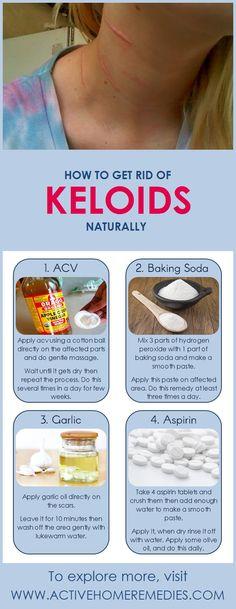 Home Remedies to Get rid of Keloids #keloids #homeremedies
