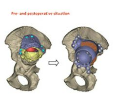 The 3D printed hip, made from titanium, was designed using the patient's CT scan and CAD CAM (computer aided design and computer aided manufacturing) technology, meaning it was designed to the patient's exact specifications and measurements. The implant will provide a new socket for the ball of the femur bone to enter. Behind the implant and between the pelvis, doctors have inserted a graft containing bone stem cells.