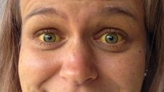 Although eyes say about one's soul, they can speak about your medical condition also. If you have red, yellow or protruding eyes it can mean that  there is something wrong with you relating health issues. Bloodshot eyes Bloodshot eyes can mean that you are over-exposed to sun, that you are irritated from dust you which […]
