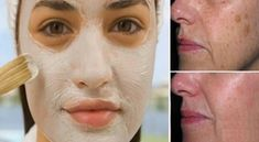 The baking soda and vinegar mask that removes stains bicarbonato Sport Treiben, Natural Beauty Recipes, Frappe, Cellulite, Diy Beauty, Vinegar, Baking Soda, Facial, Stains