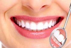 Cuida tu sonrisa y la salud de tus dientes  Paga Bs. 70 en vez de Bs. 210 por Una Limpieza con ultrasonido + Profilaxis + Fluor