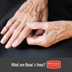 Why Do Seniors Get Horizontal Lines on Their Fingernails in Cincinnati, OH?