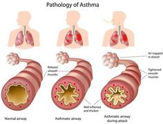 Here's an emergency home remedy for an asthma attack you need to know about, along with other natural remedies for asthma wheezing and cough that give amazing (and fast) relief...