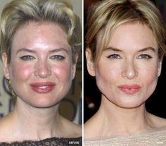 Renee Zellweger has taken a lot of criticism for her plastic surgery choices. Before and after after photos show the transformation from her natural face, to a Botox face, and back to natural. Plastic Surgery Photos, Celebrity Plastic Surgery, Renee Zellweger, Celebrities Before And After, Flawless Face, Cosmetic Dentistry, No Photoshop, Beauty Makeup, Skin Products