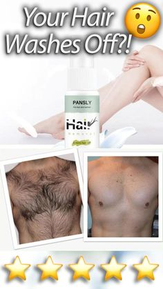 Hair Removal Spray, Hair Removal Machine, Home Hair Removal, Permanent Hair Removal Cream, Leg Hair Removal, Natural Hair Removal, Hair Removal For Men, Hair Removal Remedies, Remove Unwanted Facial Hair