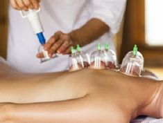 back cupping benefits to treating lower back pain and general benefits for body health. These are cupping benefits for lower back pain. As you can see, cupping helps in treating lower back pain in several ways. All of which will make you feel better, feel less pain and most importantly, heal faster.