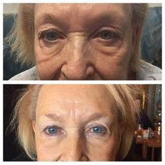 Nerium works!  No gimmicks, just real results on real people!