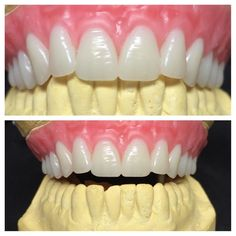 This patient wanted his teeth to look like a specific celebrity. Can you guess who?#dentures #dentaltechnician by shelbydentallab Our Dentures Page: http://www.myimagedental.com/services/general-dentistry/dentures/ Other General Dentistry services we offer: http://www.myimagedental.com/services/general-dentistry/ Google My Business: https://plus.google.com/ImageDentalStockton/about Our Yelp Page: http://www.yelp.com/biz/image-dental-stockton-3 Our Facebook Page…