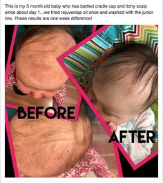 Any moms dealing with cradle cap on their little ones?? Monat Rejuvenique oil and Monat Junior natural hair care can help clear it up. Look at these results!!