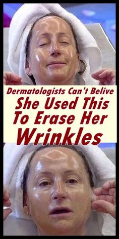 Do you have problems with wrinkles? If you are annoyed with all those expensive creams and beauty treatments, here in this article we offer you this natural recipe that will help you get rid of the wrinkles, even those ones in the most problematic areas. Beauty Skin, Health And Beauty, Beauty Box, Star Beauty, Beauty Care, Beauty Makeup, Diy Beauty, Makeup Eyes, Homemade Beauty