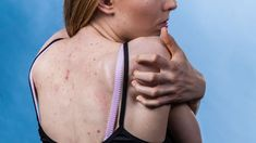 Back acne is more difficult to get rid of, the skin of the back is much thicker. Home solutions can help. Zinc Capsules, Big Pimple, How To Get Thick, Home Remedies For Acne, Lighten Skin, Menstrual Cycle, Take A Shower, Skin Problems, Pimples