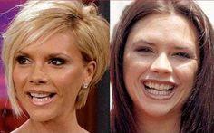 20 Celebrities with Fake Teeth Perfect Teeth, Perfect Smile, Teeth Implants, Dental Implants, Little Do You Know, Ulzzang Makeup, Eliza Dushku, Winning Numbers, Best Dentist