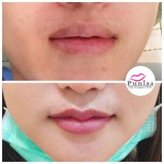 A new lip reduction surgery technique called Extreme Plastic Surgery, Lip Surgery, Thin Lips, Piercings, Korean Beauty, Case Study, Medicine, Skin Care, Cosmetics
