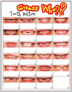 "Fall Into First: Guess Who? Tooth Edition.  Smile poster taken for ""Dental Health"" Science night.  Could be of eyes, too!"