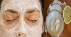 Découvrez une astuce beauté : un masque pour le visage à base de bicarbonate de soude et de jus de citron pour une belle peau